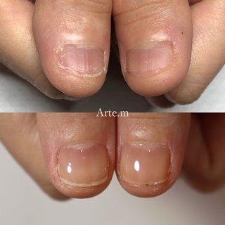 爪の面積ふえてるやんー✨😭  深爪がお悩みでご来店 1ヶ月ちょっと通って頂いて 変化に感動😭 うれし〜♡ .  ┈ ┈ ┈ ┈ ┈ ┈ ┈ ┈ ┈ ┈ ┈ ┈  こんなお悩みありませんか?  ☑︎ジェルの持ちが悪い ☑︎爪の形がキライ ☑︎爪がうすい、割れる ☑︎指先を隠してしまう ☑︎︎ネイルサロンは無縁だと思っている ☑︎手荒れ、爪の凸凹  自信が持てる指先へ💅🏻 爪は変わる✨ 🙆🏼♀️ジェルをせず、ケアだけのご来店も大歓迎    #爪育福岡 #自爪育#爪育サロン #一層残し#美爪クリエイター福岡#噛み癖#男爪ネイル #反り爪 #貝爪#二枚爪 #爪の悩み#爪コンプレックス #大野城ネイル#大野城ネイルサロン#太宰府ネイルサロン#筑紫野ネイルサロン #持ちがいいネイル #深爪福岡#深爪#深爪育成 #深爪ネイル#ジェルネイル#シンプルネイル#ブライダルネイル#自爪育成#ネイル初めて#大野城#ネイルケア#爪のケアサロン #オールシーズン #ハンド #シンプル #ショート #クリア #ジェル #お客様 #arte.m.nail #ネイルブック