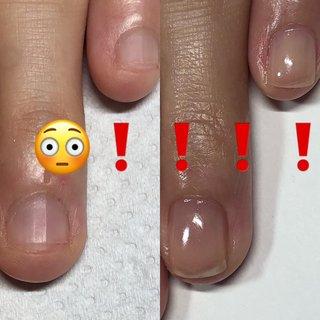 この変化👀❗️❗️ 薬指は指の中でも 引っ込んでるし、変化が出やすい!!  まだジェルの持ちが安定していないけど  ストレスなく過ごして貰えるように、あきらめずに試行錯誤していくよ✊🏻    #爪育福岡 #自爪育#爪育サロン #一層残し#美爪クリエイター福岡#噛み癖#毟りぐせ#男爪ネイル #反り爪 #貝爪#二枚爪 #爪の悩み#爪コンプレックス #大野城ネイル#大野城ネイルサロン#太宰府ネイルサロン#筑紫野ネイルサロン #持ちがいいネイル #深爪福岡#深爪#深爪育成 #深爪ネイル#ジェルネイル#シンプルネイル#ブライダルネイル#自爪育成#爪のケア#大野城#ネイルケア#自爪風 #オールシーズン #ハンド #シンプル #ショート #クリア #ジェル #お客様 #arte.m.nail #ネイルブック