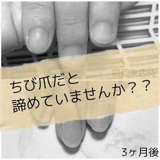 どうせ私の爪なんて…  そんな風に思ってる人はいませんか?? こちらのお客様は自分の爪がこんなもんだなーと生きてきたそうですー  しかし!! 約3ヶ月後! こんなに縦長に見える美爪さんに☆* 当店のヘルシー美爪コースでネイルを楽しんでいただけで!! まだまだキレイになりますよー!! ヘルシー美爪コースでは 初回ホームケア用品がついてきます (ネイルオイル、ファイル)  その他にも、 指先の仕組みや使い方など 丁寧に説明させていただきます!  仕組みが分かると 自然と爪にいい行動をとれるようになります✨  ぜひご来店お待ちしております❤  ・ #ネイル #nail #gelnail #ジェルネイル #ネイルデザイン #福井ネイル #福井ネイルサロン #ネイルサロン福井 #ネイルサロンあわら市 #あわら市ネイルサロン #坂井市ネイルサロン #maogel導入サロン福井 #自爪育成 #フィルイン一層残し #子育てネイル #ママネイル#thearch #爪美人 #ちび爪  #育爪 #オールシーズン #オフィス #ブライダル #ハンド #シンプル #ショート #クリア #ジェル #お客様 #UCO #ネイルブック