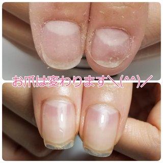 本日、ご卒業されました❤️❤️ 久し振りの自爪ですが もちろん!自爪のツメはとても 柔軟で、脆くなく、強度のあるお爪に 変身しております🙋♀️💓💓 ジェルオフして爪がペラペラなんて 当店ではございません。 爪を自爪に戻して、維持できるようにが 最終目標でございます。 綺麗なお爪に生まれ変わりました! ご卒業、本当におめでとうございます🥺💓💓  #自爪育成#自爪育成サロン #深爪#深爪緩和#深爪矯正 #Nailsalon_renatus #ネイルブック